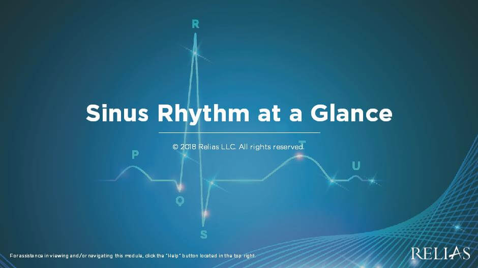 Sinus Rhythm at a Glance