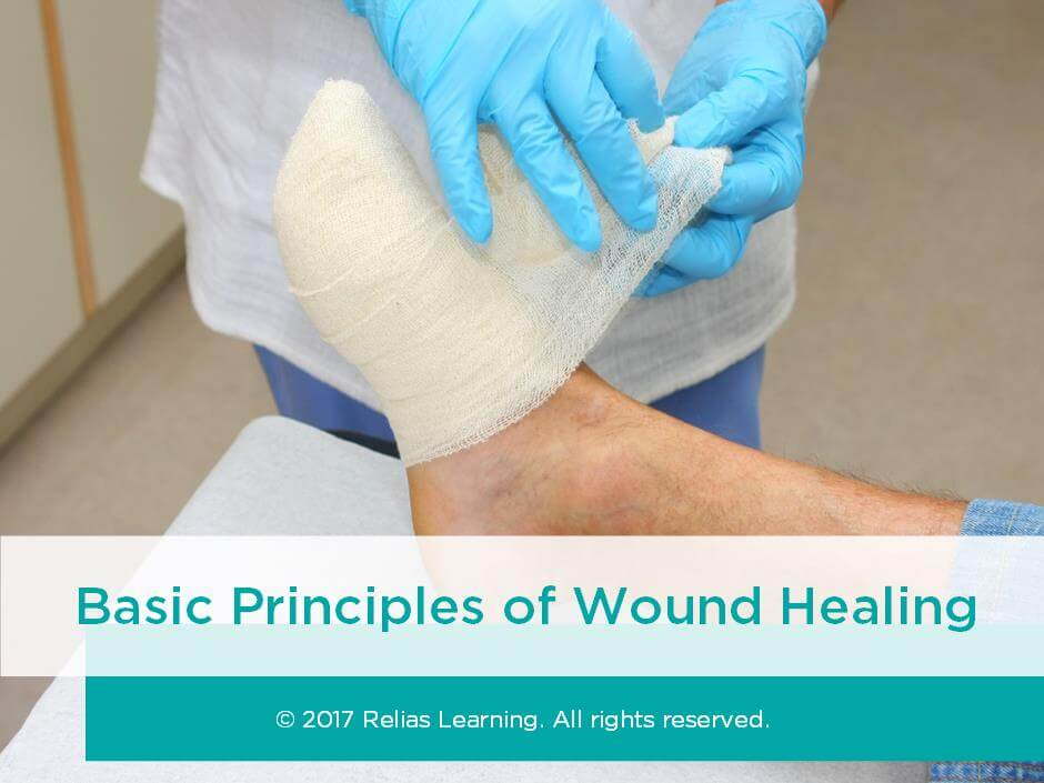 Basic Principles of Wound Healing | RELIAS ACADEMY