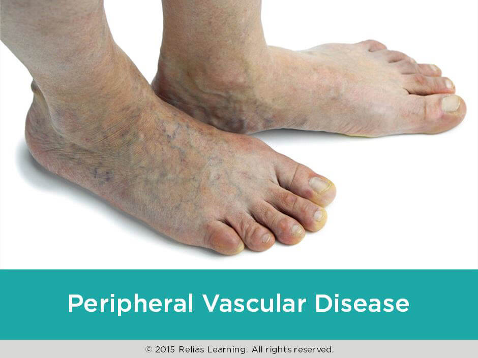 peripheral vascular disease Tuesday, july 2, 2013 — treating peripheral artery disease (pad) with exercise might seem like a catch-22 — many people with the condition are unable to exercise — but a new walking program .