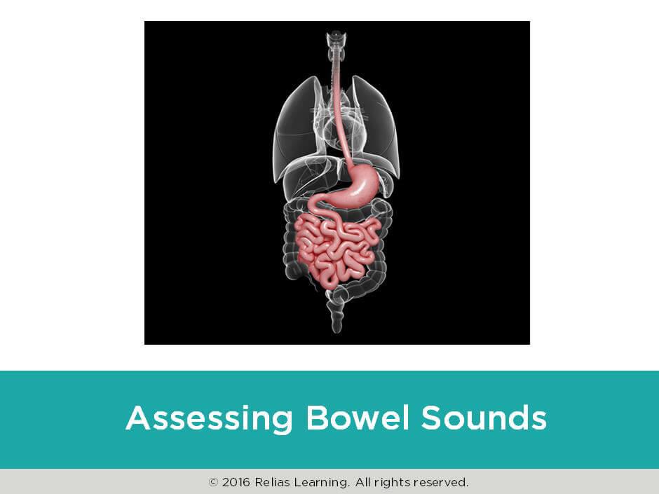 Rapid Review: Assessing Bowel Sounds